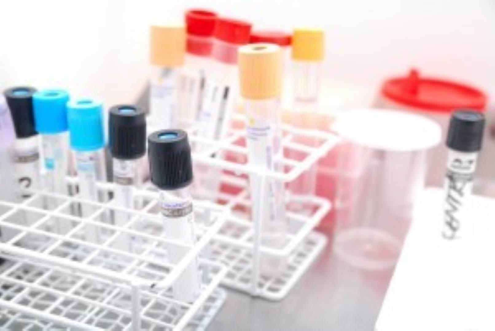 testing for celiac disease